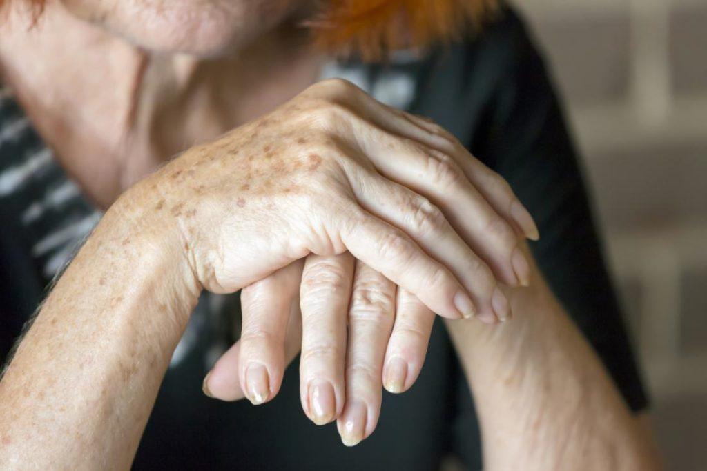 Боль в руках при артрите