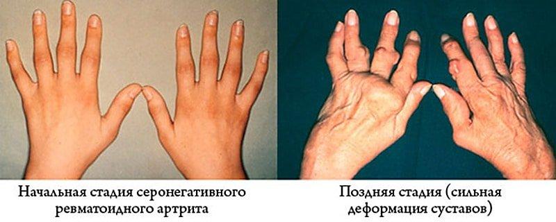 Активность артрита