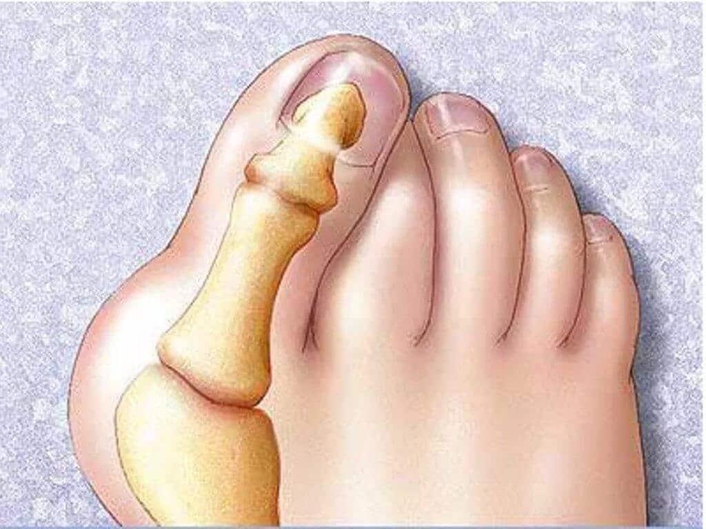 Симптомы артрита плюснефалангового сустава стопы