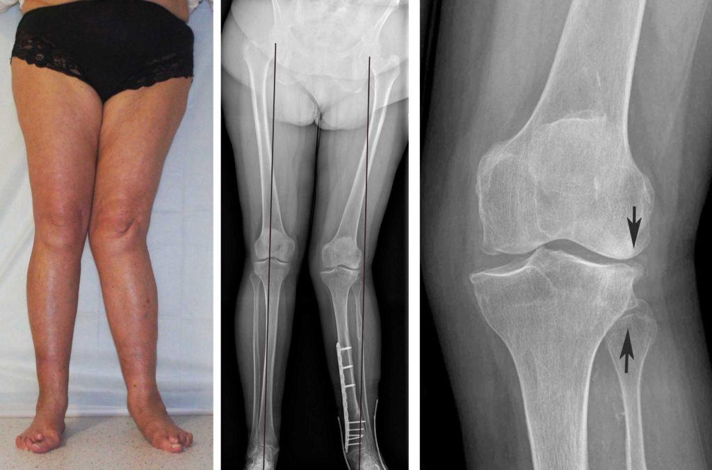 Четвертая степень артрита