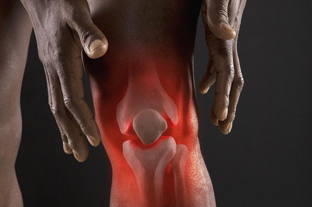 Экссудативный синовит: причины развития и симптомы, принципы лечения