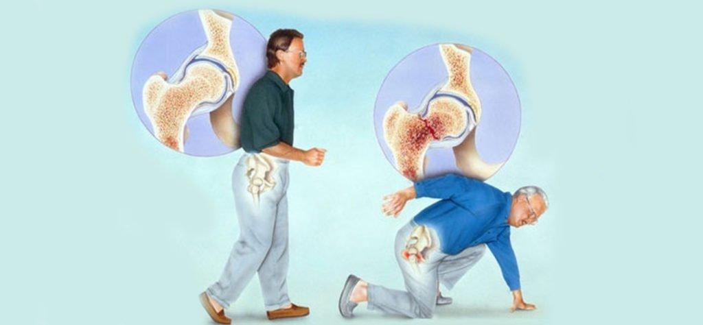 Что такое остеопороз 3 степени