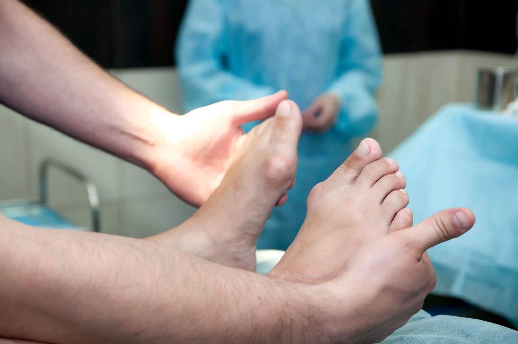 Операция при подагре: показания, виды, этапы, можно ли обойтись без хирургического вмешательства?