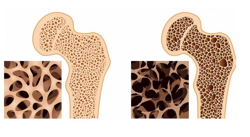 Что такое пятнистый остеопороз